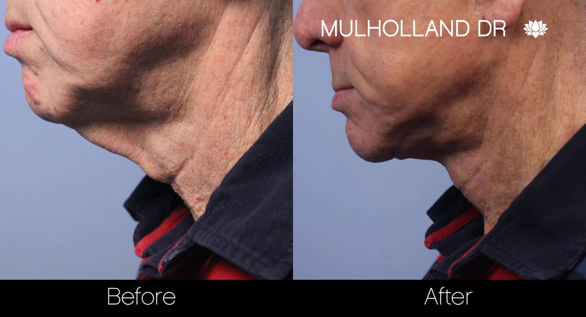 Male Double Chin - Before and After Gallery – Photo 17