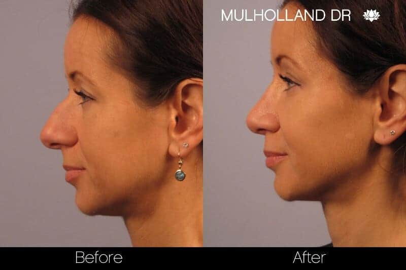 Rhinoplasty - Before and After Gallery - Patient Photo 19