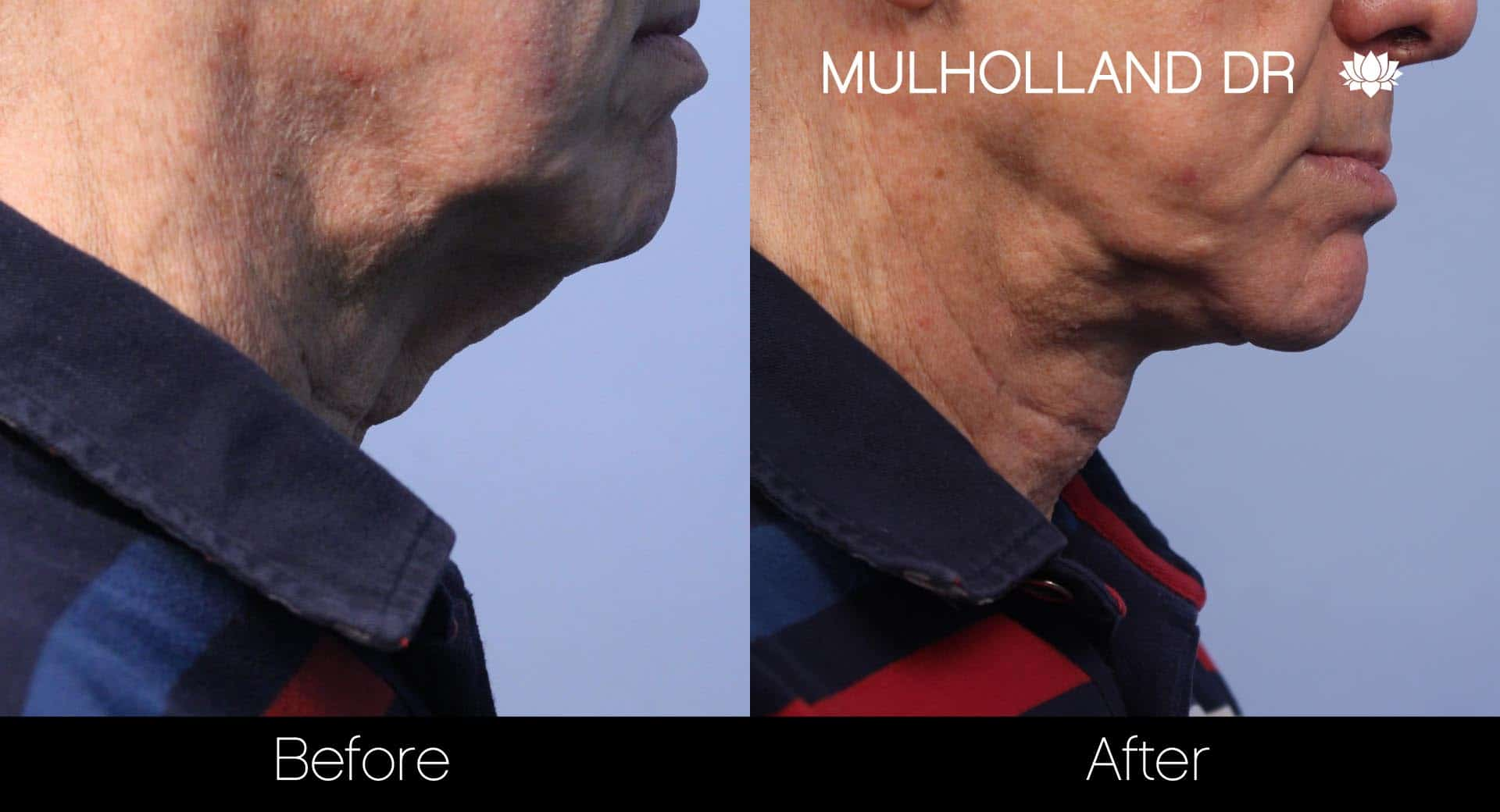 Male Double Chin - Before and After Gallery – Photo 19