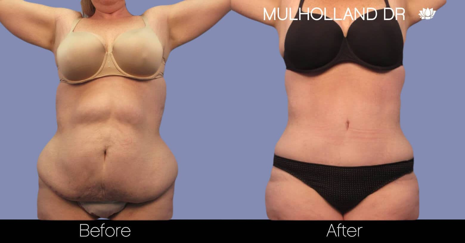 Body Lift - Before and After Gallery – Photo 1