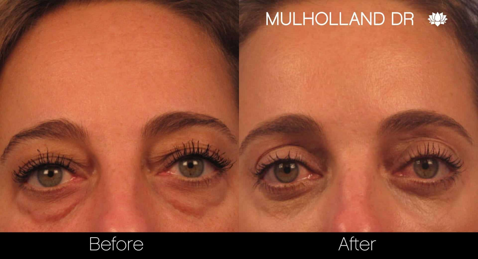 Blepharoplasty - Before and After Gallery – Photo 1
