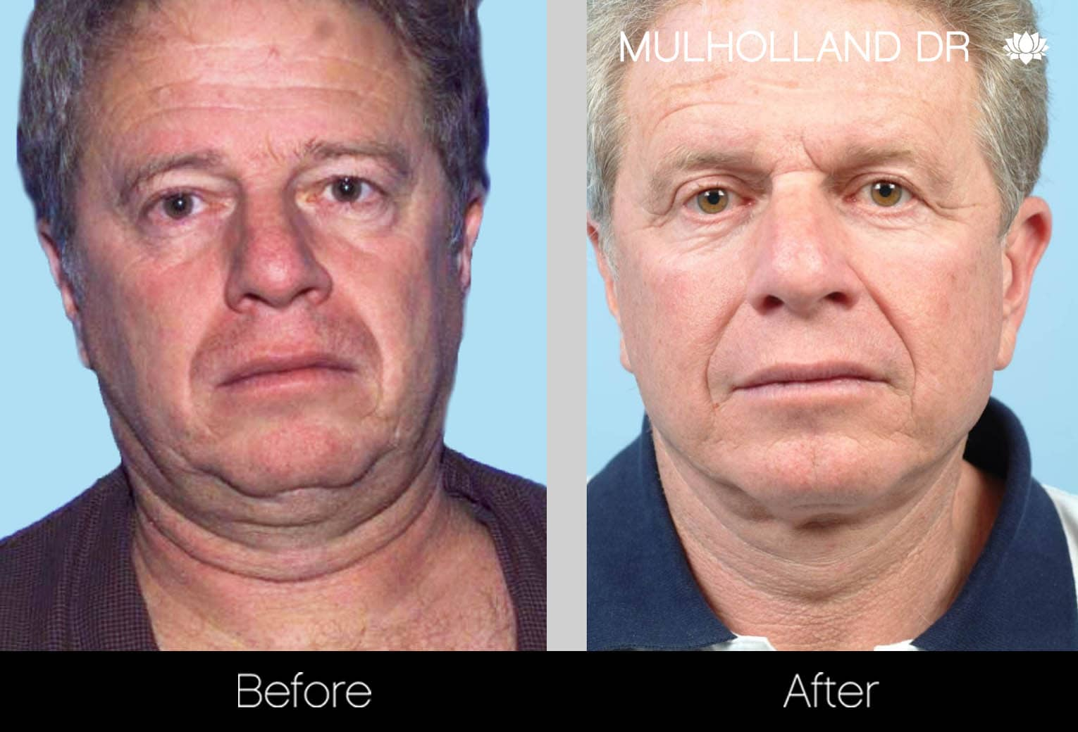 Male Double Chin - Before and After Gallery – Photo 20