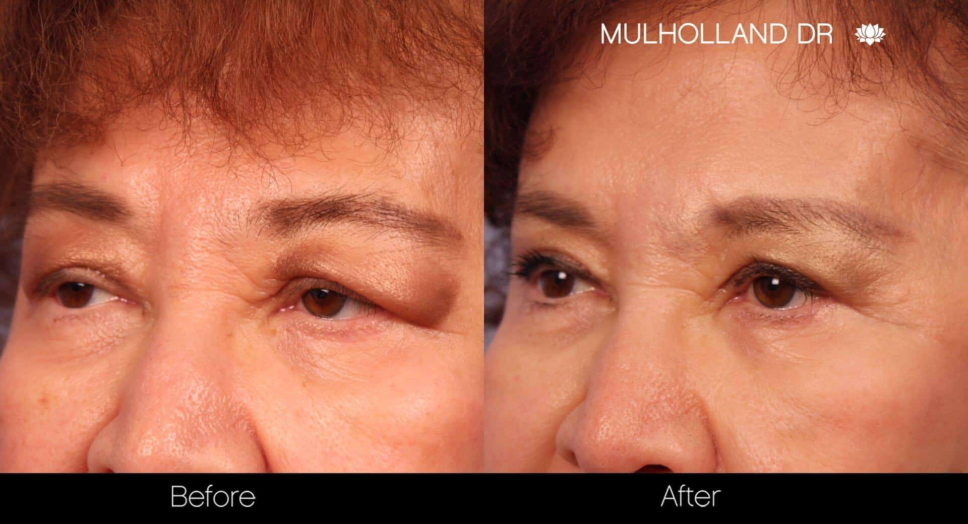 Blepharoplasty - Before and After Gallery – Photo 21