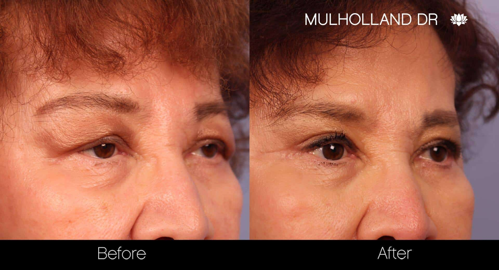 Blepharoplasty - Before and After Gallery – Photo 22