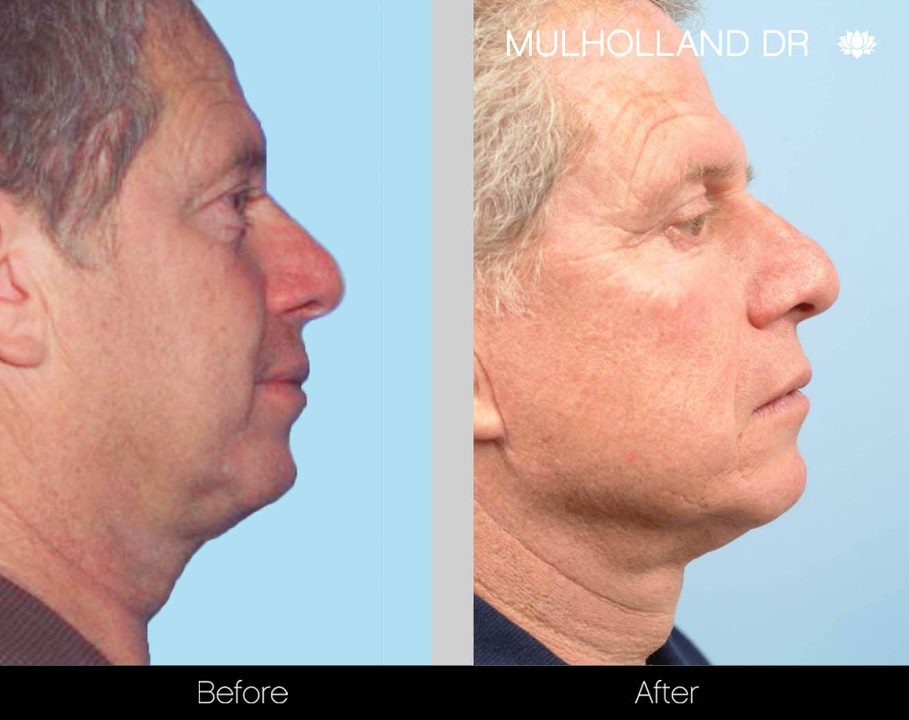 Male Double Chin - Before and After Gallery – Photo 23