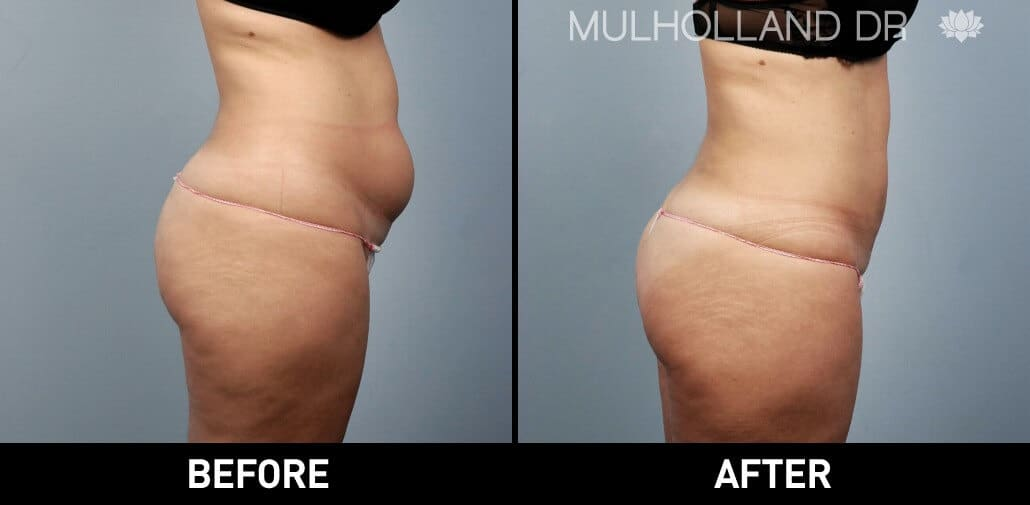 Body Lift - Before and After Gallery – Photo 25