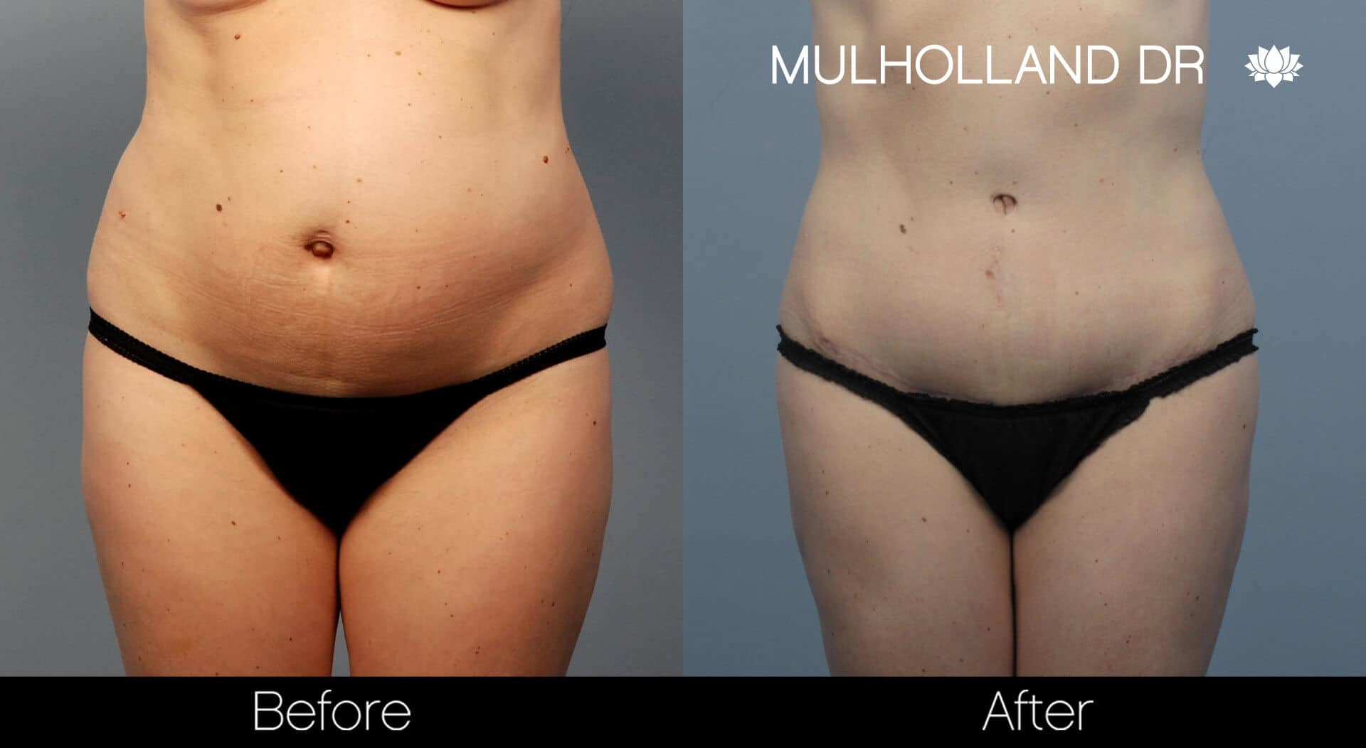 Body Lift - Before and After Gallery – Photo 27