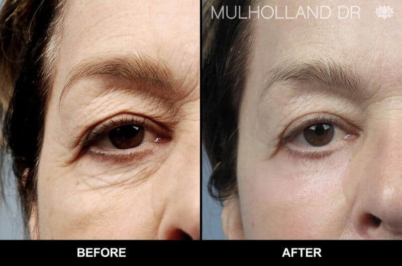 Blepharoplasty - Before and After Gallery – Photo 27