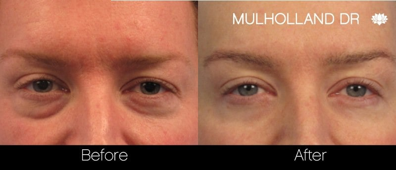 Blepharoplasty - Before and After Gallery – Photo 29