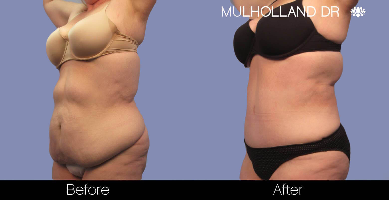 Body Lift - Before and After Gallery – Photo 2