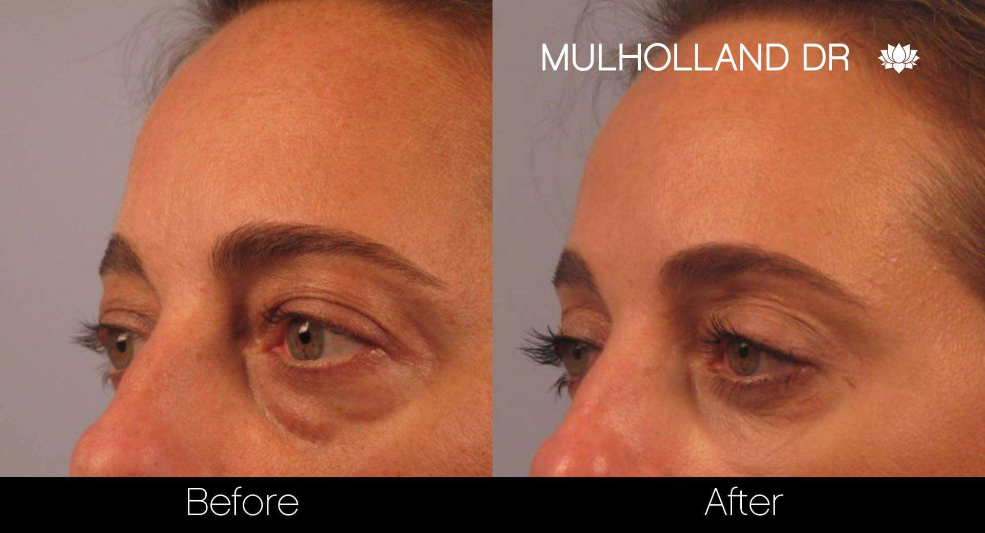 Blepharoplasty - Before and After Gallery – Photo 2