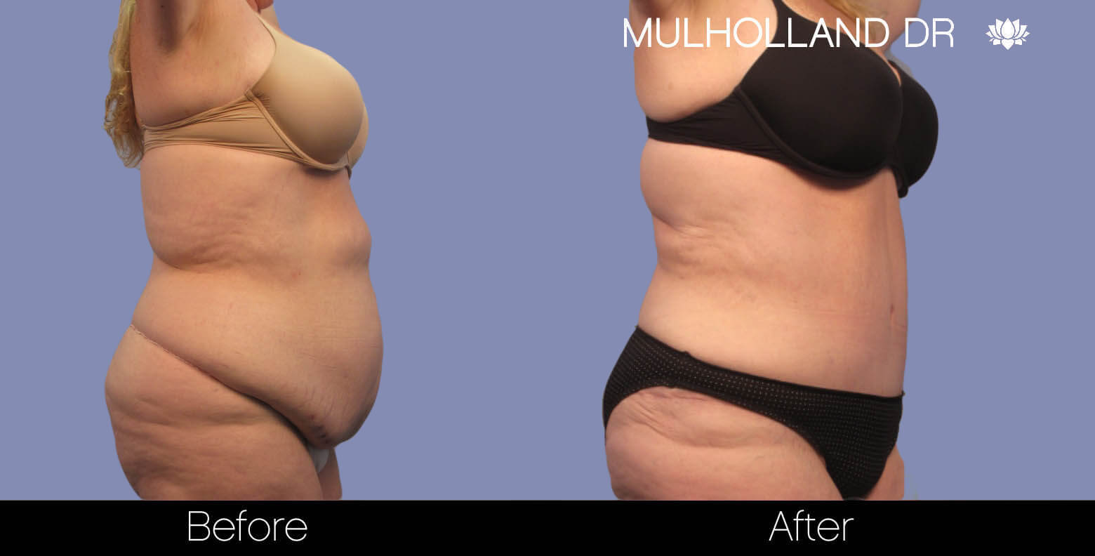 Body Lift - Before and After Gallery – Photo 3