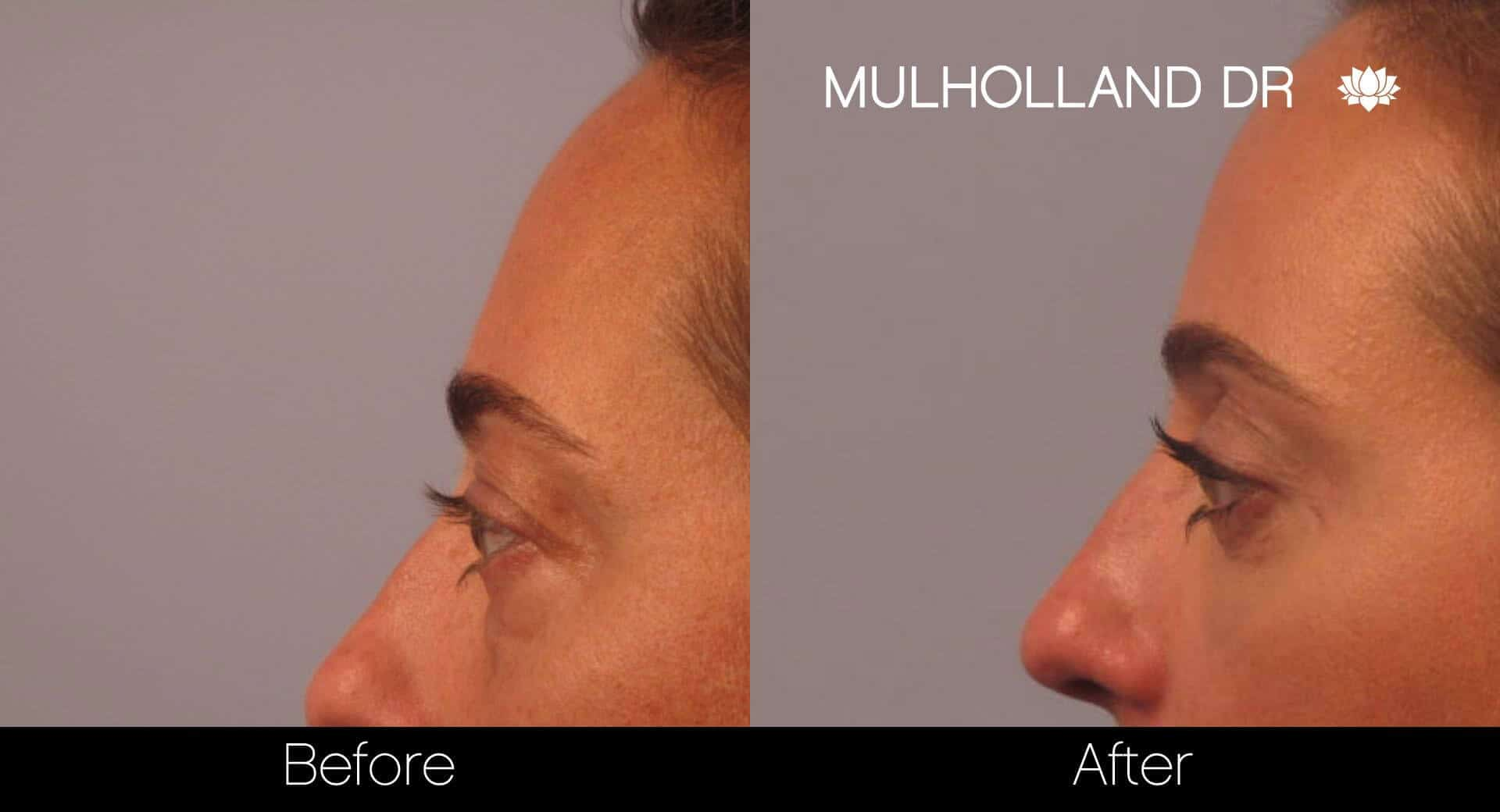 Blepharoplasty - Before and After Gallery – Photo 3