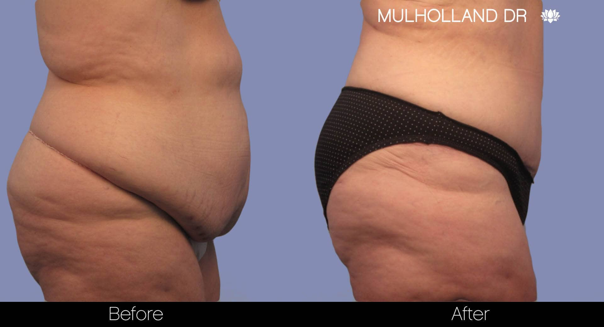 Body Lift - Before and After Gallery – Photo 5