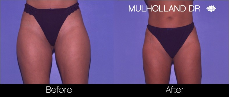 SmartLipo - Before and After Gallery - Patient Photo 62