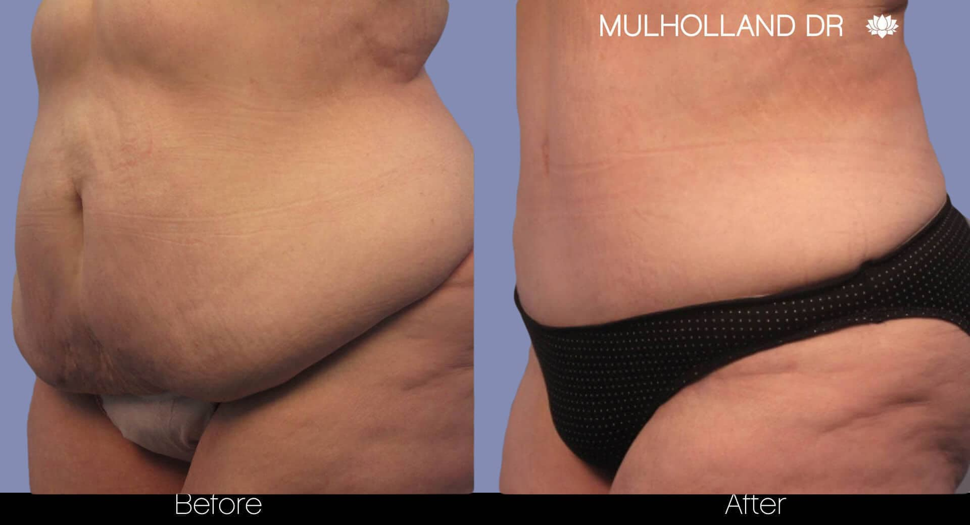 Body Lift - Before and After Gallery – Photo 6