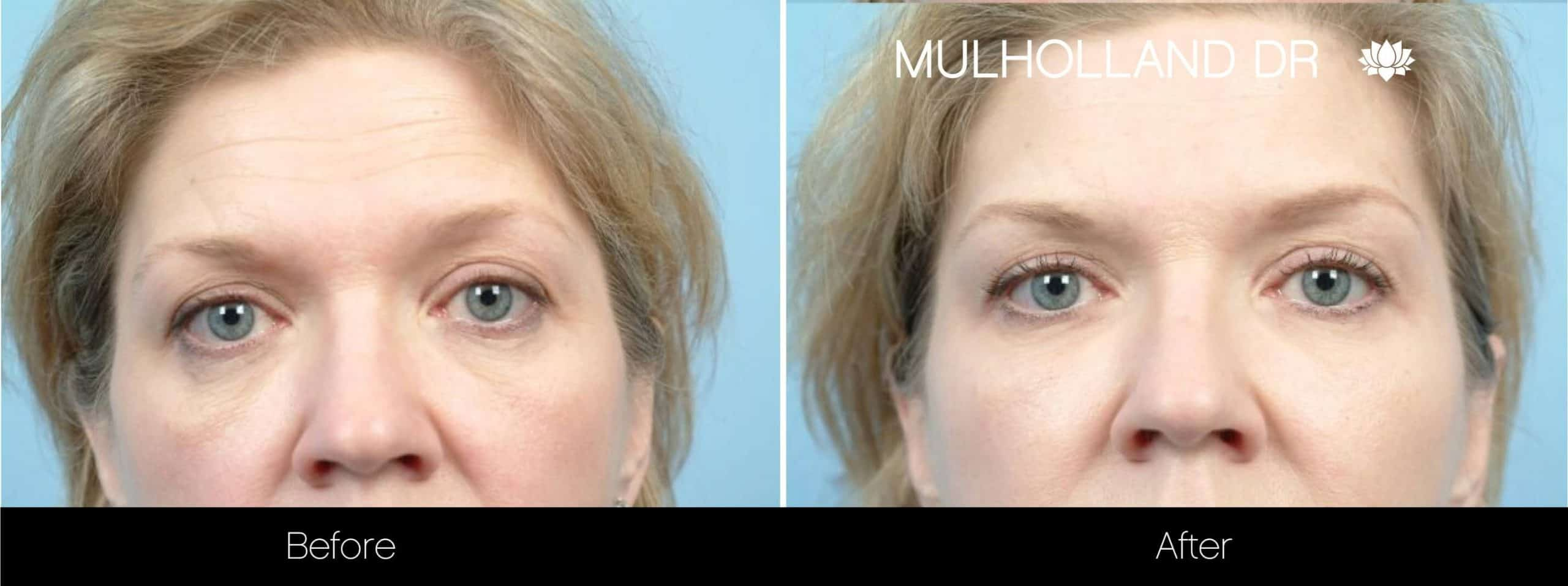 Fractional CO2 - Before and After Gallery - Patient Photo 71