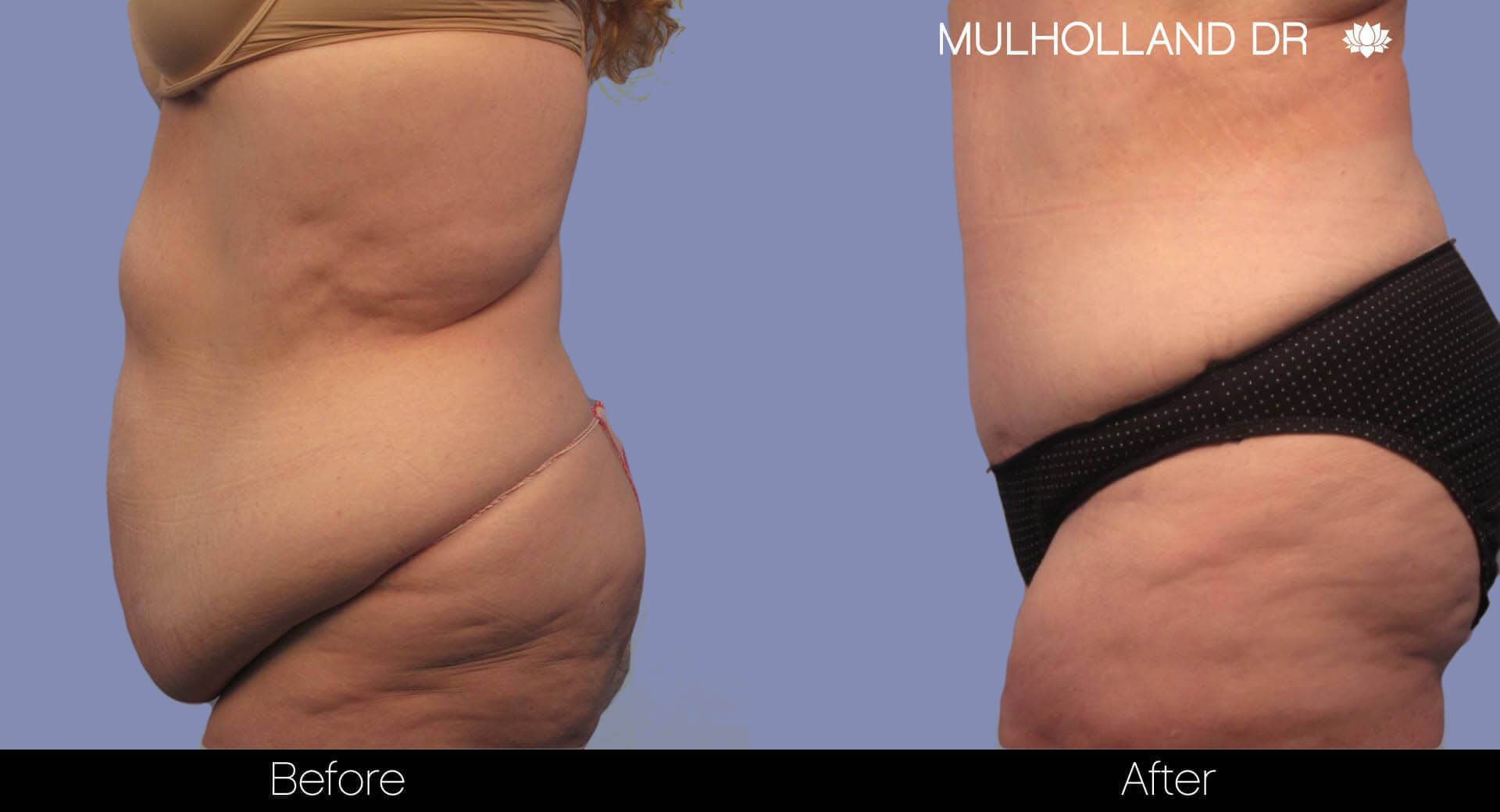 Body Lift - Before and After Gallery – Photo 7