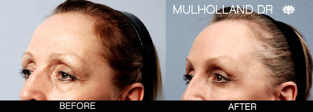 Blepharoplasty - Before and After Gallery – Photo 7