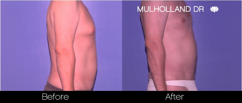Liposuction -Before and After Gallery - Patient Photo 81