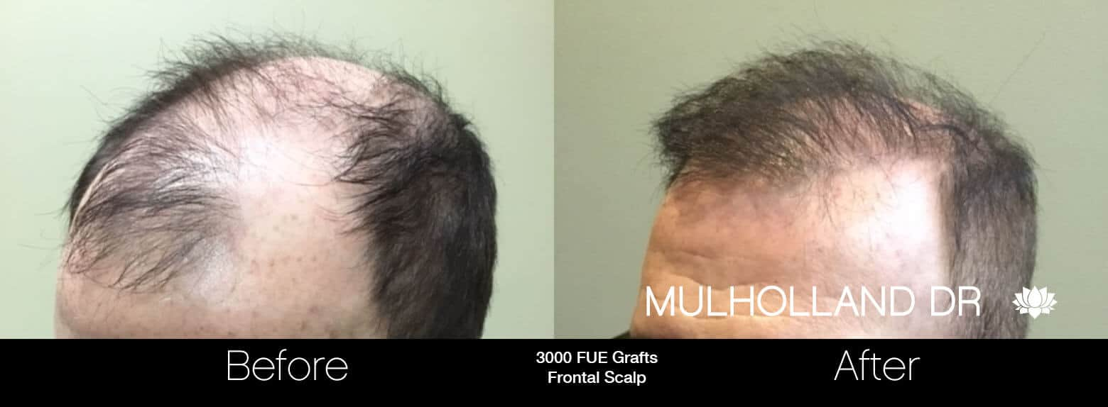 Artas Hair Transplant - Before and After Gallery - Patient Photo 82