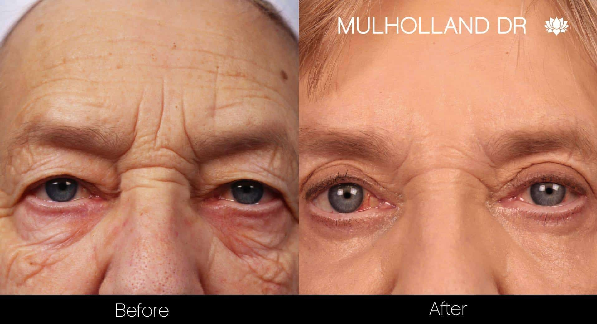 Blepharoplasty - Before and After Gallery – Photo 9