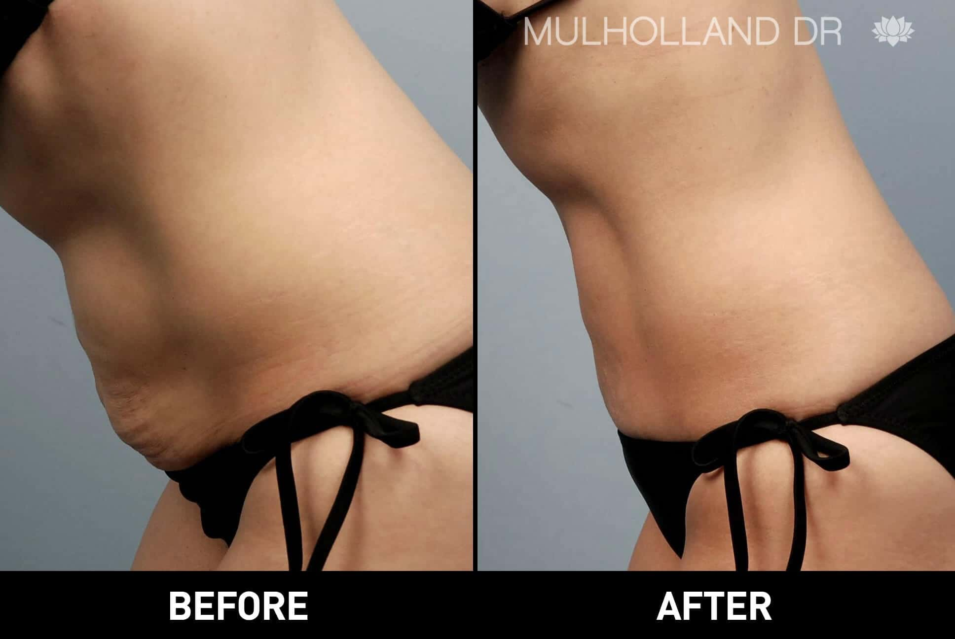 Liposuction -Before and After Gallery - Patient Photo 1