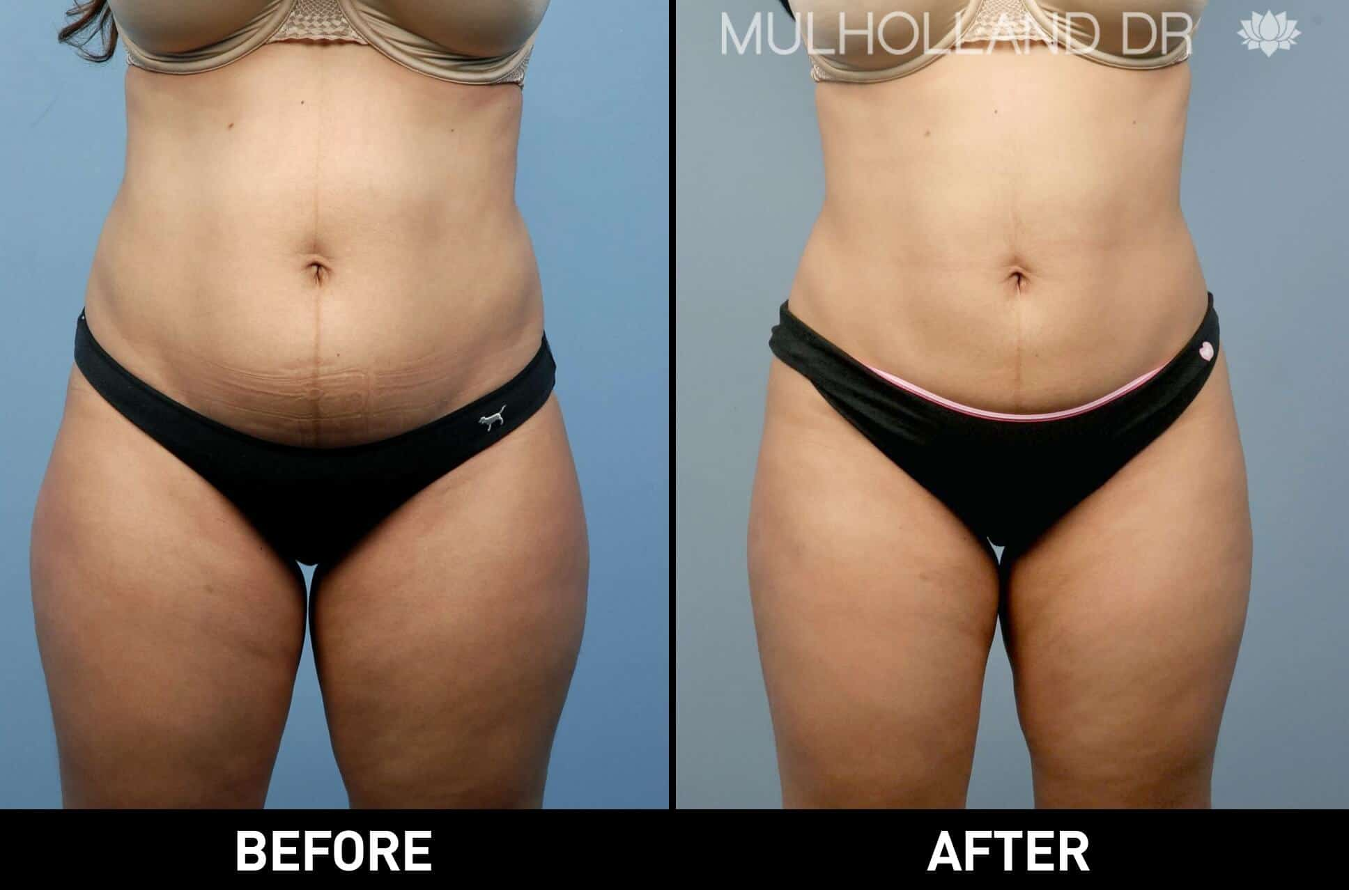 Liposuction -Before and After Gallery - Patient Photo 17