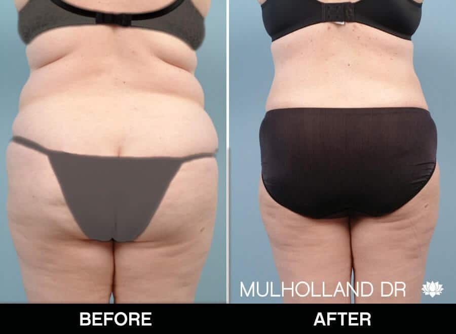 Liposuction -Before and After Gallery - Patient Photo 18