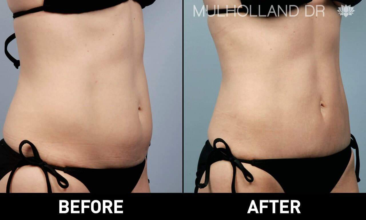 Liposuction -Before and After Gallery - Patient Photo 2