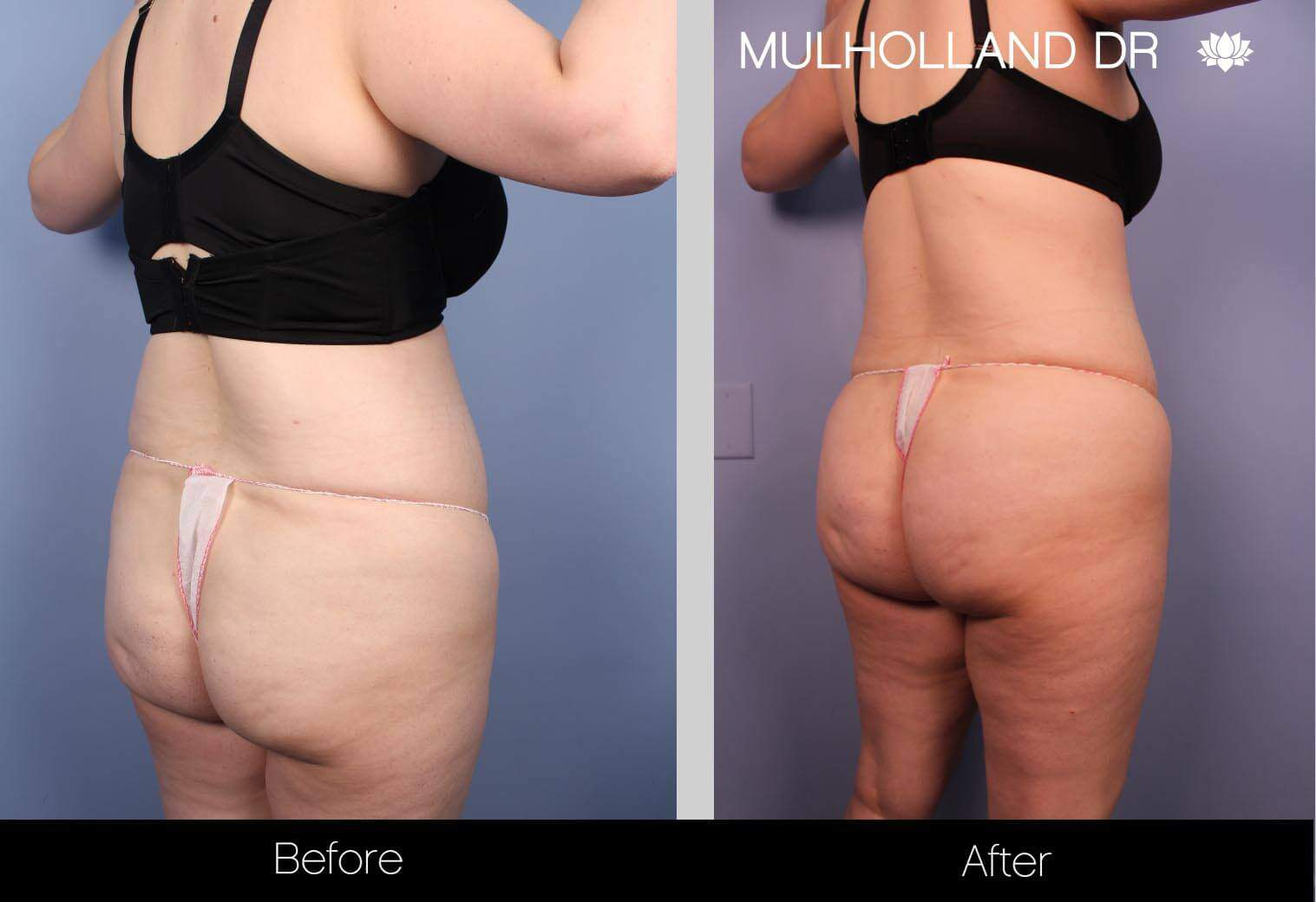 Liposuction -Before and After Gallery - Patient Photo 30