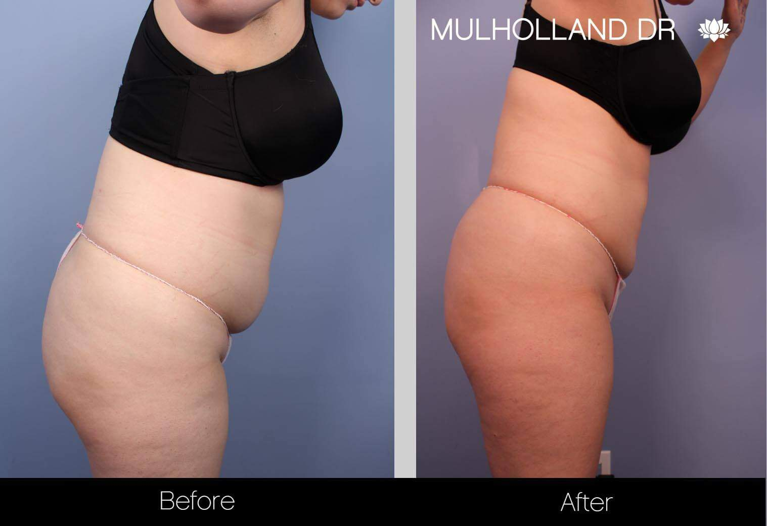 Liposuction -Before and After Gallery - Patient Photo 32