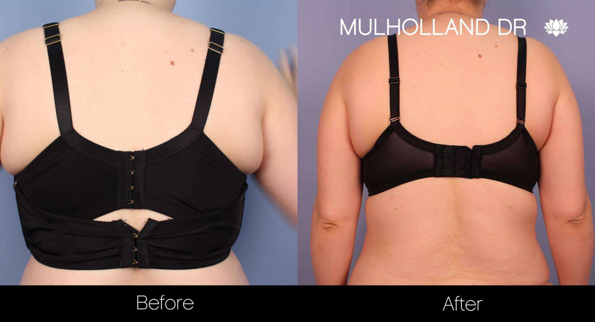 Liposuction -Before and After Gallery - Patient Photo 33