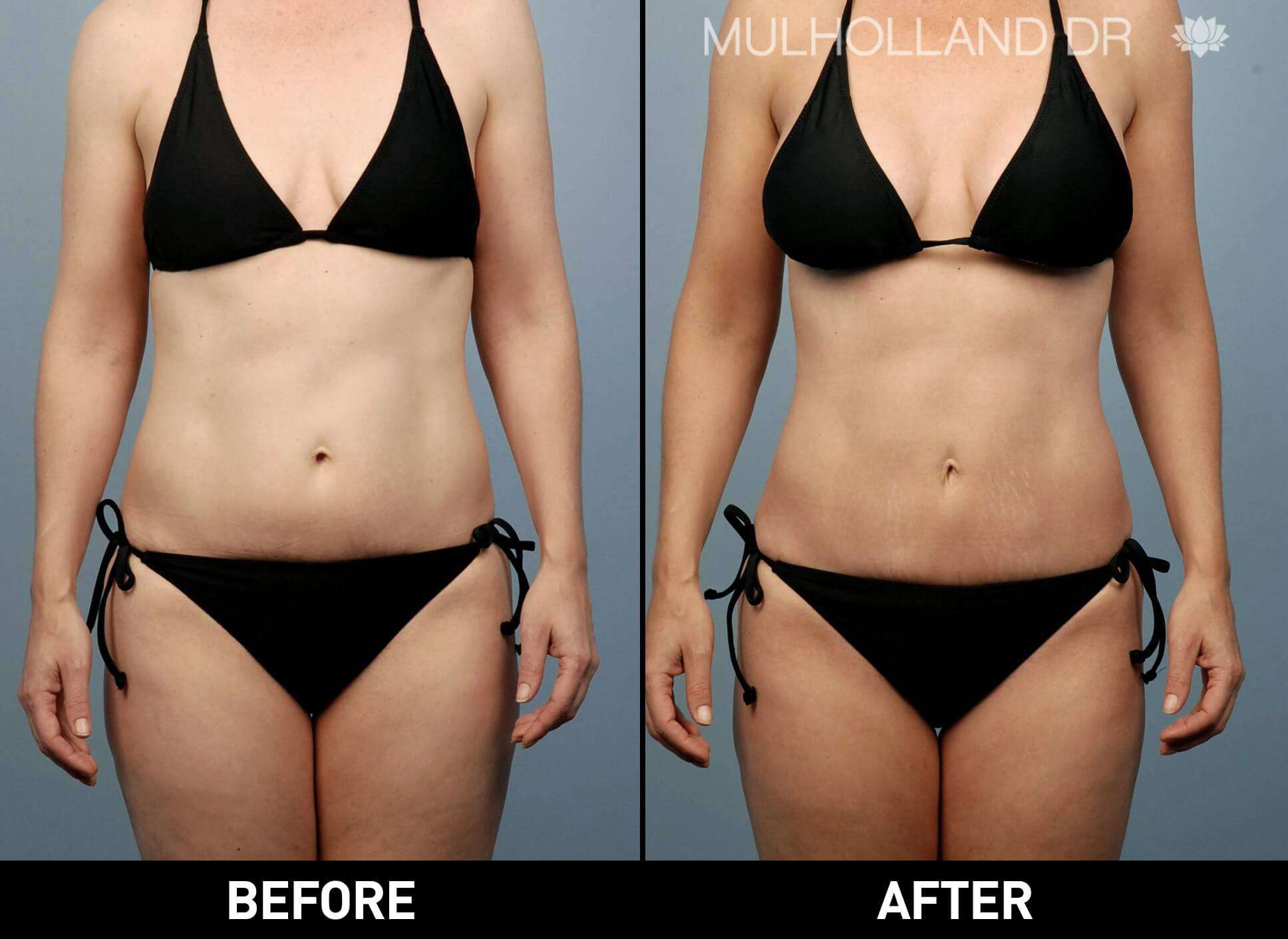 Liposuction -Before and After Gallery - Patient Photo 4