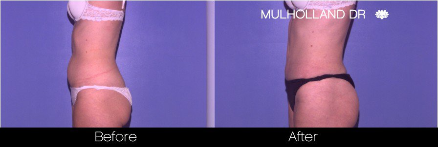 Liposuction -Before and After Gallery - Patient Photo 42