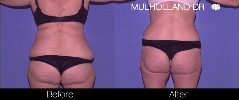 Liposuction -Before and After Gallery - Patient Photo 46