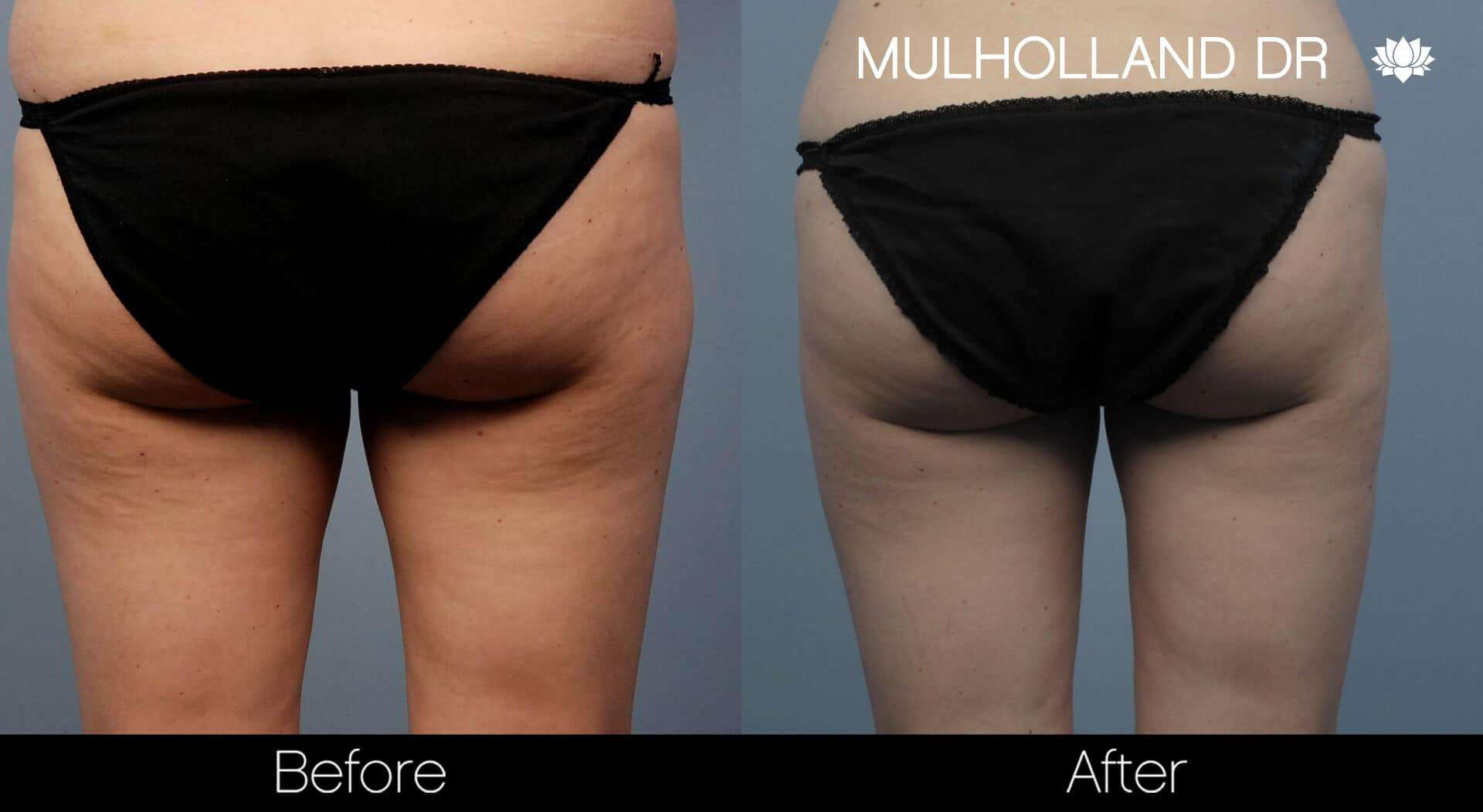 Liposuction -Before and After Gallery - Patient Photo 55