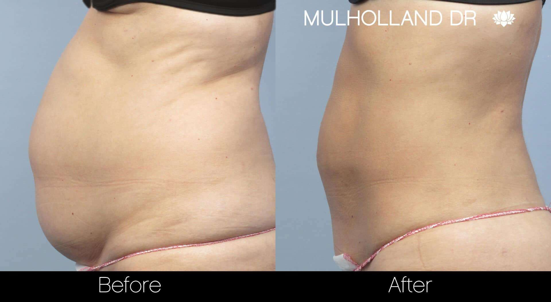 Liposuction -Before and After Gallery - Patient Photo 6