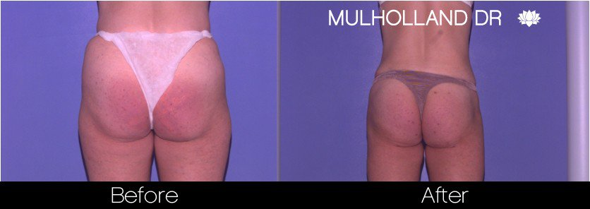 Liposuction -Before and After Gallery - Patient Photo 67