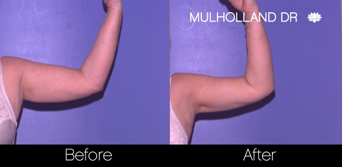 Liposuction -Before and After Gallery - Patient Photo 68