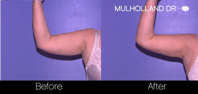 Liposuction -Before and After Gallery - Patient Photo 69