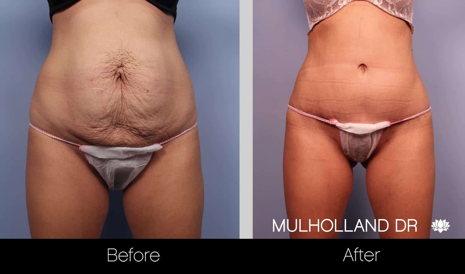 Liposuction -Before and After Gallery - Patient Photo 7