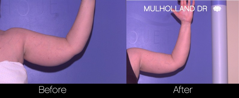 Liposuction -Before and After Gallery - Patient Photo 73