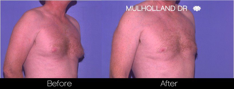 Liposuction -Before and After Gallery - Patient Photo 77