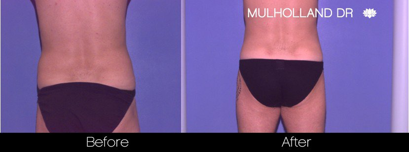 Liposuction -Before and After Gallery - Patient Photo 84