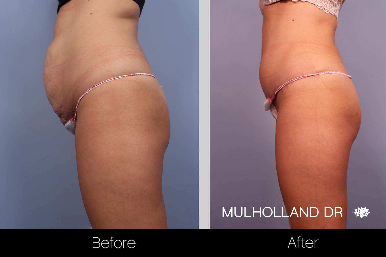 Liposuction -Before and After Gallery - Patient Photo 9