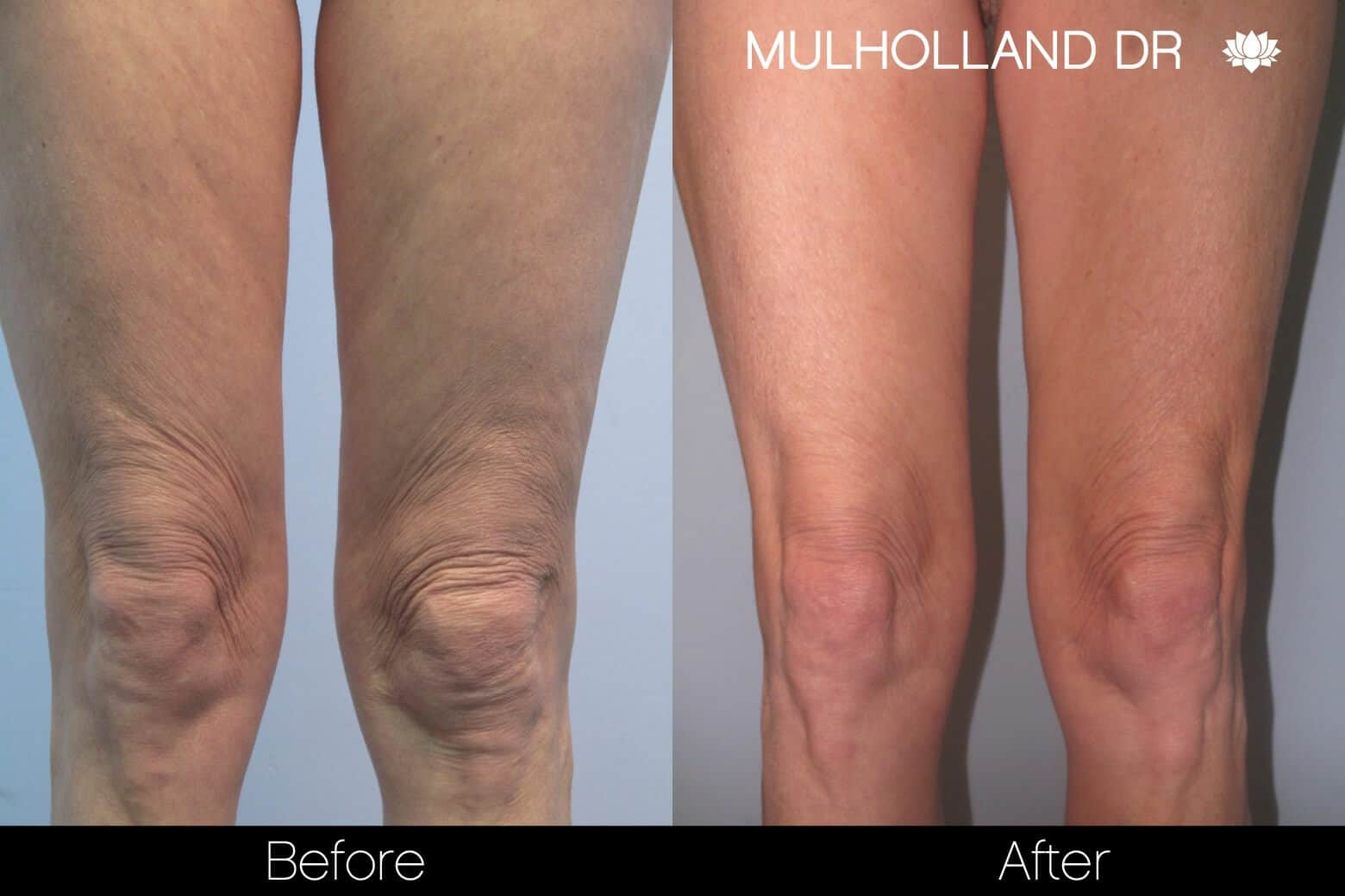 Liposuction -Before and After Gallery - Patient Photo 91
