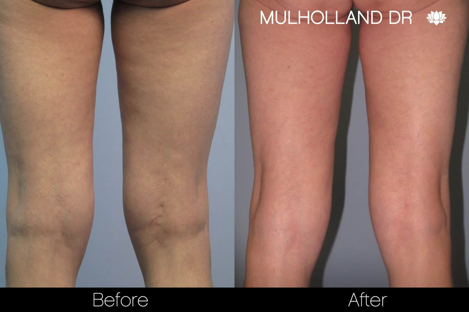 Liposuction -Before and After Gallery - Patient Photo 92