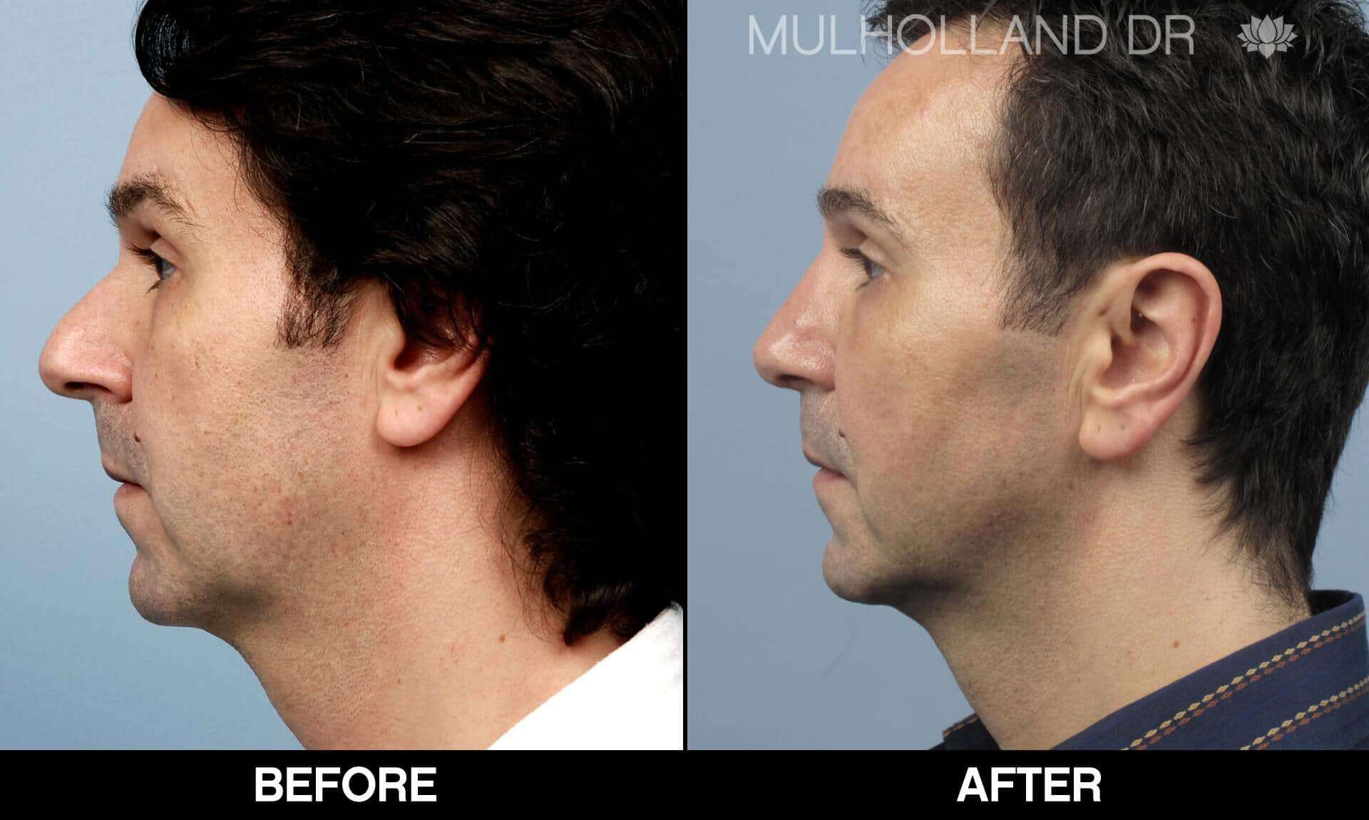 Male Rhinoplasty - Before and After Gallery - Patient Photo 1