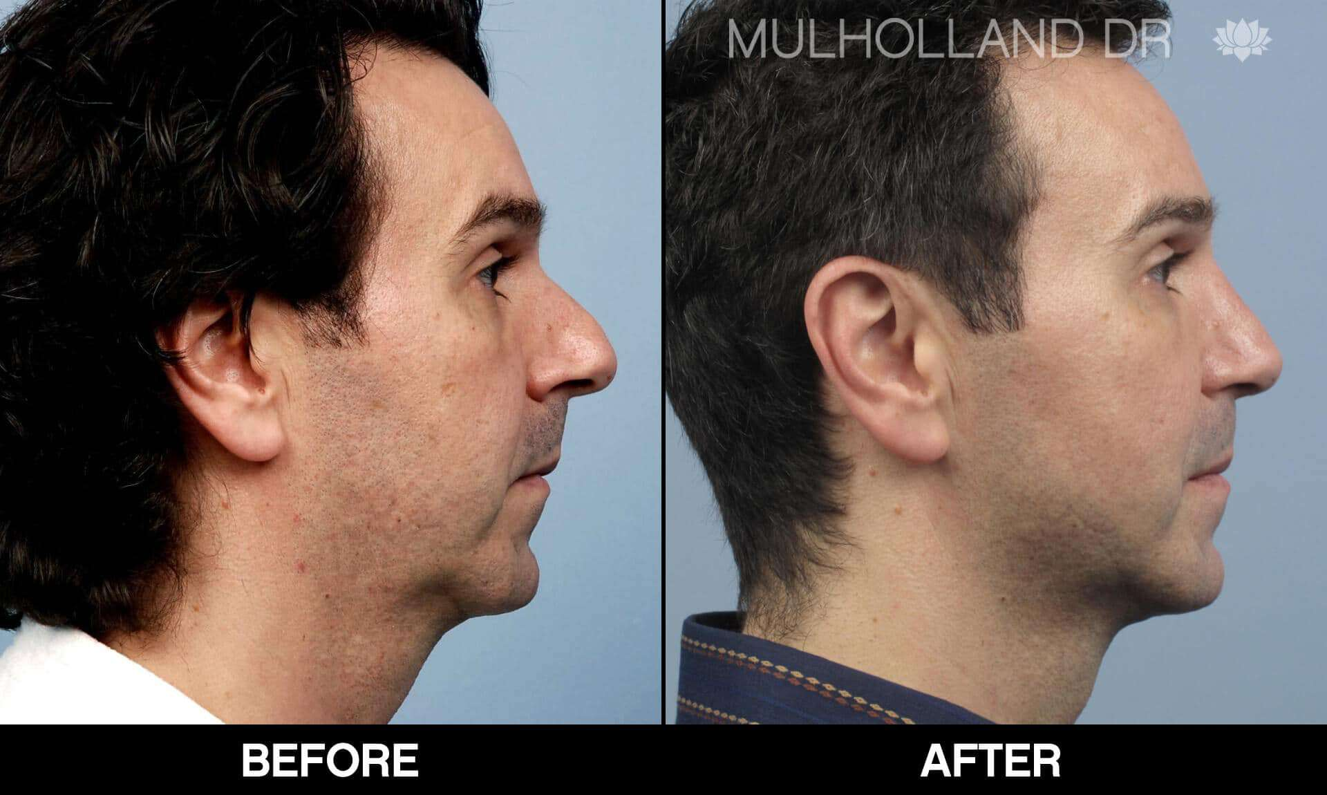 Male Rhinoplasty - Before and After Gallery - Patient Photo 2